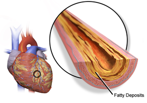 Heart Disease – An Overview